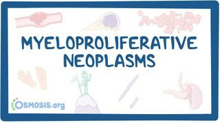 Video poster for Clinical Reasoning: Myeloproliferative neoplasms