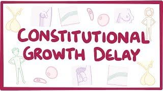 Video poster for Constitutional growth delay