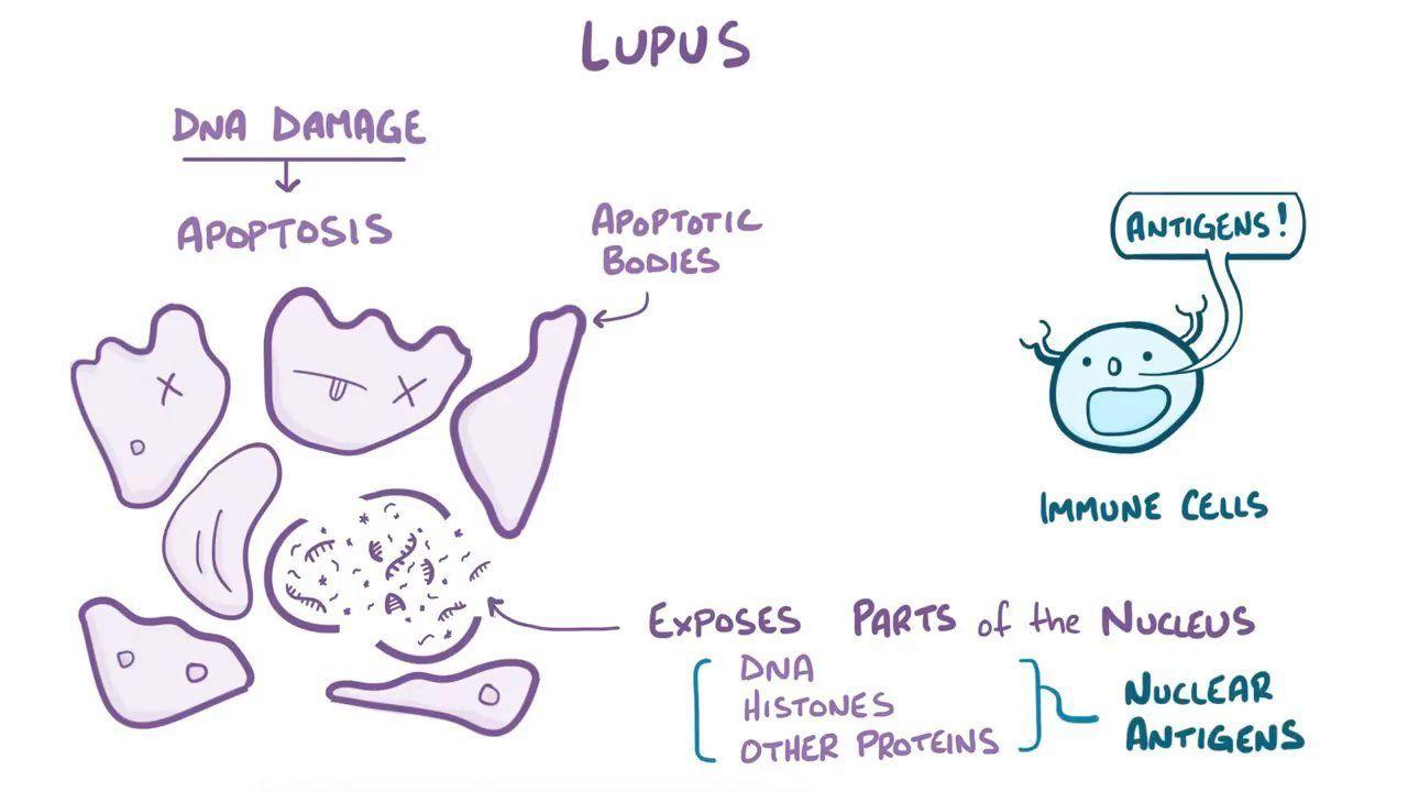 Lupus Nephritis Video Anatomy Definition Function Osmosis