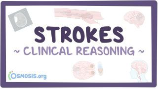 Clinical Reasoning: Stroke
