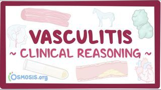 Video poster for Clinical Reasoning: Vasculitis
