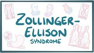 Video poster for Zollinger-Ellison syndrome