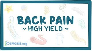 Video poster for High Yield: Back pain