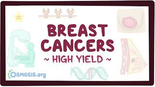 Video poster for High Yield: Breast cancers