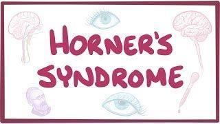 Video poster for Horner's syndrome