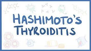 Video poster for Hashimoto's thyroiditis