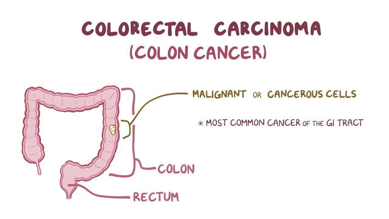 colorectal cancer usmle