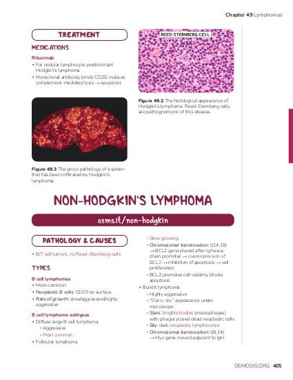"Chapter 49 Lymphomas  TREATMENT MEDICATIONS Rituximab ▪ For nodular lymphocyte predominant Hodgkin's lymphoma ▪ Monoclonal antibody, binds CD20, induces complement-mediated lysis → apoptosis Figure 49.2 The histological appearance of Hodgkin's lymphoma. Reed–Sternberg cells are pathognomonic of this disease.  Figure 49.3 The gross pathology of a spleen that has been infiltrated by Hodgkin's lymphoma.  NON-HODGKIN'S LYMPHOMA osms.it/non-hodgkin PATHOLOGY & CAUSES ▪ B/T cell tumors, no Reed–Sternberg cells  TYPES B cell lymphomas ▪ More common ▪ Neoplastic B cells: CD20 on surface ▪ Rate of growth: slow/aggressive/highly aggressive B cell lymphoma subtypes ▪ Diffuse large B cell lymphoma ▫ Aggressive ▫ Most common ▪ Follicular lymphoma  ▫ Slow growing ▫ Chromosomal translocation: t(14,18) → BCL2 gene placed after Ig heavy chain promoter → overexpression of BCL2 → inhibition of apoptosis → cell proliferation ▫ BCL2 promotes cell viability, blocks apoptosis ▪ Burkitt lymphoma ▫ Highly aggressive ▫ ""Starry sky"" appearance under microscope ▫ Stars: tingible bodies (macrophages) with phagocytosed dead neoplastic cells ▫ Sky: dark neoplastic lymphocytes ▫ Chromosomal translocation: t(8,14) → Myc gene moved adjacent to IgH  OSMOSIS.ORG 405"