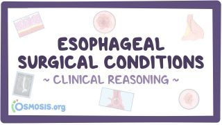 Video poster for Clinical Reasoning: Esophageal surgical conditions