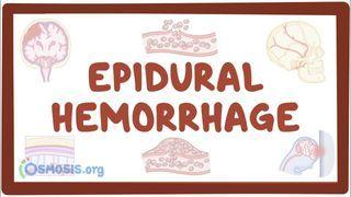 Video poster for Epidural hematoma