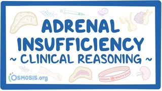 Video poster for Clinical Reasoning: Adrenal insufficiency