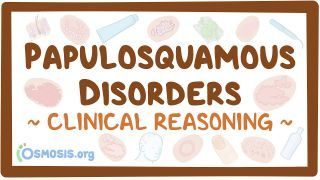 Video poster for Clinical Reasoning: Papulosquamous disorders