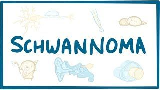 Video poster for Schwannoma