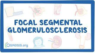 Video poster for Focal Segmental Glomerulosclerosis