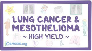 Video poster for High Yield: Lung cancer and mesothelioma