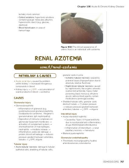 Chapter 106 Acute & Chronic Kidney Disease lactate); most common ▫ Colloid solutions: hypertonic solutions containing larger molecules; albumin, hyperoncotic starch (e.g. glucose, dextrose) ▫ Blood transfusion: in case of hemorrhage  Figure 106.1 The clinical appearance of uremic frost in an individual with azotemia.  RENAL AZOTEMIA osms.it/renal-azotemia PATHOLOGY & CAUSES ▪ Acute renal injury caused by problem within kidney → increased nitrogenous compounds in blood ▪ Kidney injury → ↓ GFR → accumulation of waste products in blood → azotemia  CAUSES Glomerular injury ▪ Glomerulonephritis ▫ Inflammation of glomeruli (e.g. poststreptococcal glomerulonephritis, Goodpasture's syndrome, Wegener's granulomatosis, IgA nephropathy) ▫ Deposition of immune complexes on glomerular basement membrane → activation of complement system → chemoattraction of macrophages, neutrophils → mediator release → inflammation, podocyte damage → protein, blood cell leakage → reduces pressure gradient between arterioles, tubules → ↓ GFR, oliguria Tubular injury ▪ Acute tubular necrosis: damage to tubular epithelial cells; shedding of tubular cells,  granular casts in urine ▫ Ischemic tubular necrosis: caused by prerenal issues (hypoperfusion due to absolute, relative fluid loss) ▫ Nephrotoxic tubular necrosis: caused by nephrotoxins, like organic solvents (carbon tetrachloride), heavy metal poisoning (lead, mercury), ethylene glycol, radiocontrast agents, certain medications (aminoglycosides) ▪ Shedded tubular cells, granular casts obstruct tubule → ↑ tubular pressure → reduces pressure gradient between arterioles, tubules → ↓ GFR → oliguria Interstitial injury ▪ Acute interstitial nephritis ▫ Caused by Type I, IV hypersensitivity due to nonsteroidal anti-inflammatory drugs (NSAIDs)/penicillin/diuretics ▫ Inflammation of interstitium → renal papillary necrosis → hematuria ▪ Bilateral pyelonephritis Glomerular endotheliopathy ▪ Thrombotic microangiopathy, hyaline arteriolosclerosis, scleroderm