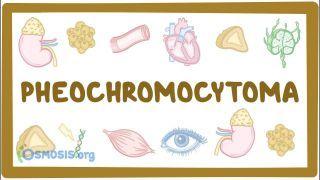 Video poster for Pheochromocytoma