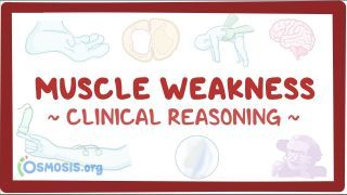 Video poster for Clinical Reasoning: Muscle weakness