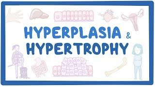 Video poster for Hyperplasia and hypertrophy