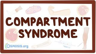 Video poster for Compartment syndrome