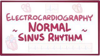 Video poster for ECG normal sinus rhythm