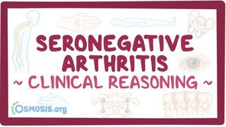 Video poster for Clinical Reasoning: Seronegative arthritis