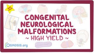 Video poster for High Yield: Congenital neurological malformations
