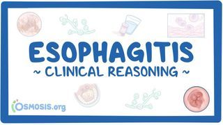 Video poster for Clinical Reasoning: Esophagitis