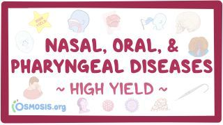 Video poster for High Yield: Nasal, oral, and pharyngeal diseases