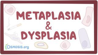 Video poster for Metaplasia and dysplasia