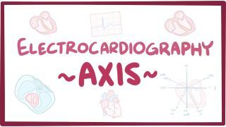 Video poster for ECG axis