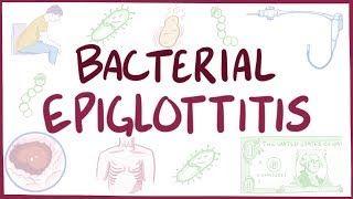 Video poster for Bacterial epiglottitis