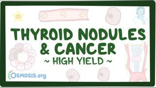 Video poster for High Yield: Thyroid nodules and thyroid cancer