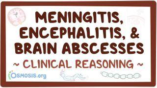 Clinical Reasoning: Meningitis, encephalitis, and brain