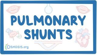 Video poster for Pulmonary shunts