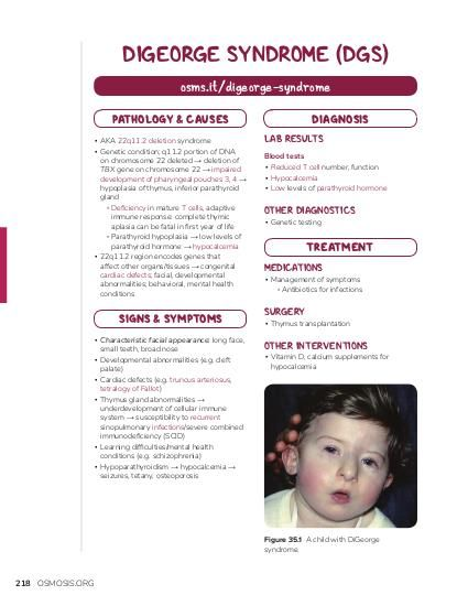 DIGEORGE SYNDROME (DGS) osms.it/digeorge-syndrome PATHOLOGY & CAUSES ▪ AKA 22q11.2 deletion syndrome ▪ Genetic condition; q11.2 portion of DNA on chromosome 22 deleted → deletion of TBX gene on chromosome 22 → impaired development of pharyngeal pouches 3, 4 → hypoplasia of thymus, inferior parathyroid gland ▫ Deficiency in mature T cells, adaptive immune response: complete thymic aplasia can be fatal in first year of life ▫ Parathyroid hypoplasia → low levels of parathyroid hormone → hypocalcemia ▪ 22q11.2 region encodes genes that affect other organs/tissues → congenital cardiac defects; facial, developmental abnormalities; behavioral, mental health conditions  SIGNS & SYMPTOMS ▪ Characteristic facial appearance: long face, small teeth, broad nose ▪ Developmental abnormalities (e.g. cleft palate) ▪ Cardiac defects (e.g. truncus arteriosus, tetralogy of Fallot) ▪ Thymus gland abnormalities → underdevelopment of cellular immune system → susceptibility to recurrent sinopulmonary infections/severe combined immunodeficiency (SCID) ▪ Learning difficulties/mental health conditions (e.g. schizophrenia) ▪ Hypoparathyroidism → hypocalcemia → seizures, tetany, osteoporosis  DIAGNOSIS LAB RESULTS Blood tests ▪ Reduced T cell number, function ▪ Hypocalcemia ▪ Low levels of parathyroid hormone  OTHER DIAGNOSTICS ▪ Genetic testing  TREATMENT MEDICATIONS  ▪ Management of symptoms ▫ Antibiotics for infections  SURGERY  ▪ Thymus transplantation  OTHER INTERVENTIONS  ▪ Vitamin D, calcium supplements for hypocalcemia  Figure 35.1 A child with DiGeorge syndrome.  218 OSMOSIS.ORG