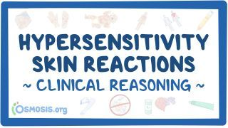 Video poster for Clinical Reasoning: Hypersensitivity skin reactions