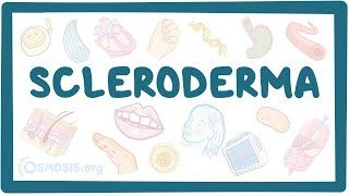 Video poster for Scleroderma