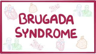 Video poster for Brugada syndrome