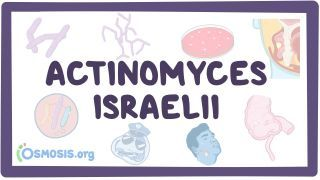 Video poster for Actinomyces israelii