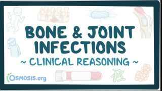 Video poster for Clinical Reasoning: Bone and joint infections