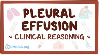 Video poster for Clinical Reasoning: Pleural effusion
