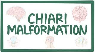 Video poster for Arnold-Chiari malformation
