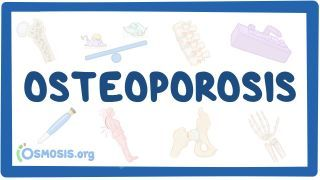 Video poster for Osteoporosis