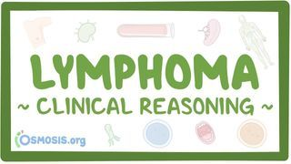 Video poster for Clinical Reasoning: Lymphoma
