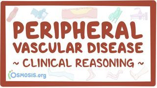 Video poster for Clinical Reasoning: Peripheral vascular disease