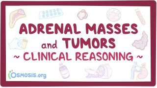 Video poster for Clinical Reasoning: Adrenal masses and tumors