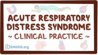 Video poster for Clinical Reasoning: Acute respiratory distress syndrome
