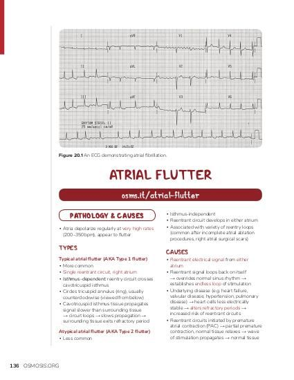 Figure 20.1 An ECG demonstrating atrial fibrillation.  ATRIAL FLUTTER osms.it/atrial-flutter PATHOLOGY & CAUSES ▪ Atria depolarize regularly at very high rates (200–350bpm), appear to flutter  TYPES Typical atrial flutter (AKA Type 1 flutter) ▪ More common ▪ Single reentrant circuit, right atrium ▪ Isthmus-dependent: reentry circuit crosses cavotricuspid isthmus ▪ Circles tricuspid annulus (ring), usually counterclockwise (viewed from below) ▪ Cavotricuspid isthmus tissue propagates signal slower than surrounding tissue → circuit loops → slows propagation → surrounding tissue exits refractory period Atypical atrial flutter (AKA Type 2 flutter) ▪ Less common  136 OSMOSIS.ORG  ▪ Isthmus-independent ▪ Reentrant circuit develops in either atrium ▪ Associated with variety of reentry loops (common after incomplete atrial ablation procedures, right atrial surgical scars)  CAUSES  ▪ Reentrant electrical signal from either atrium ▪ Reentrant signal loops back on itself → overrides normal sinus rhythm → establishes endless loop of stimulation ▪ Underlying disease (e.g. heart failure, valvular disease, hypertension, pulmonary disease) → heart cells less electrically stable → alters refractory periods → increased risk of reentrant circuits ▪ Reentrant circuits initiated by premature atrial contraction (PAC) → partial premature contraction, normal tissue relaxes → wave of stimulation propagates → normal tissue