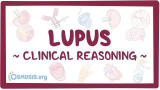 Video poster for Clinical Reasoning: Lupus